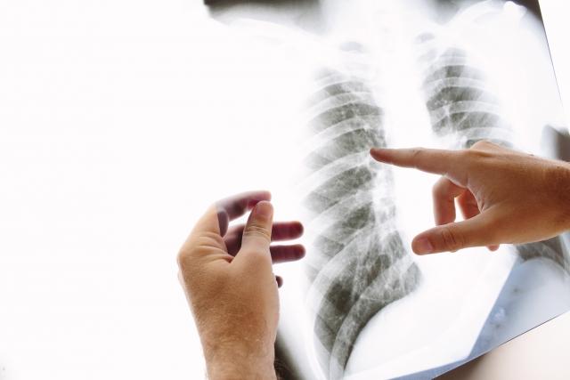 就職・転職前の健康診断での胸部X線検査の画像